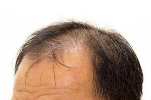 AGA (男性型脱毛症)